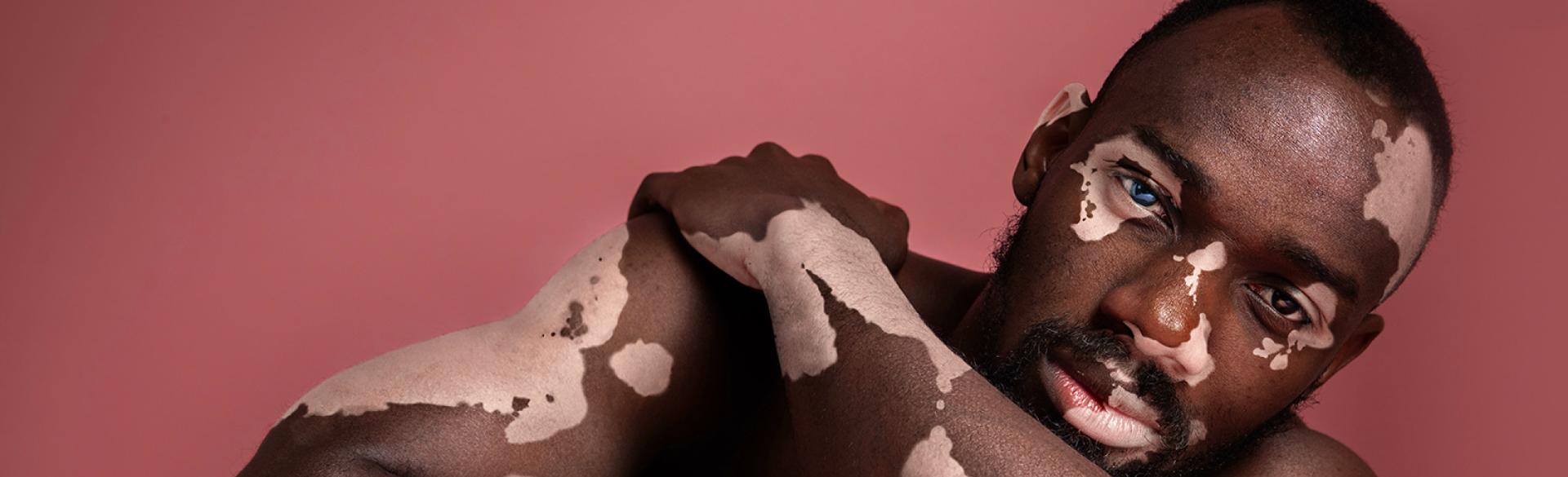 Researchers Making Progress On Causes Of Vitiligo